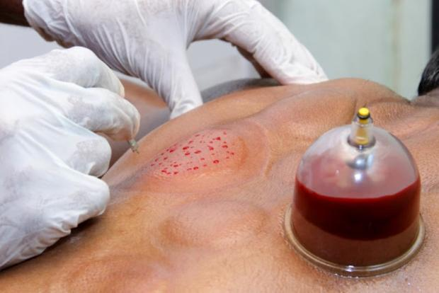 Кровопускание традиционная медицина форум конгресс 2012 медицина